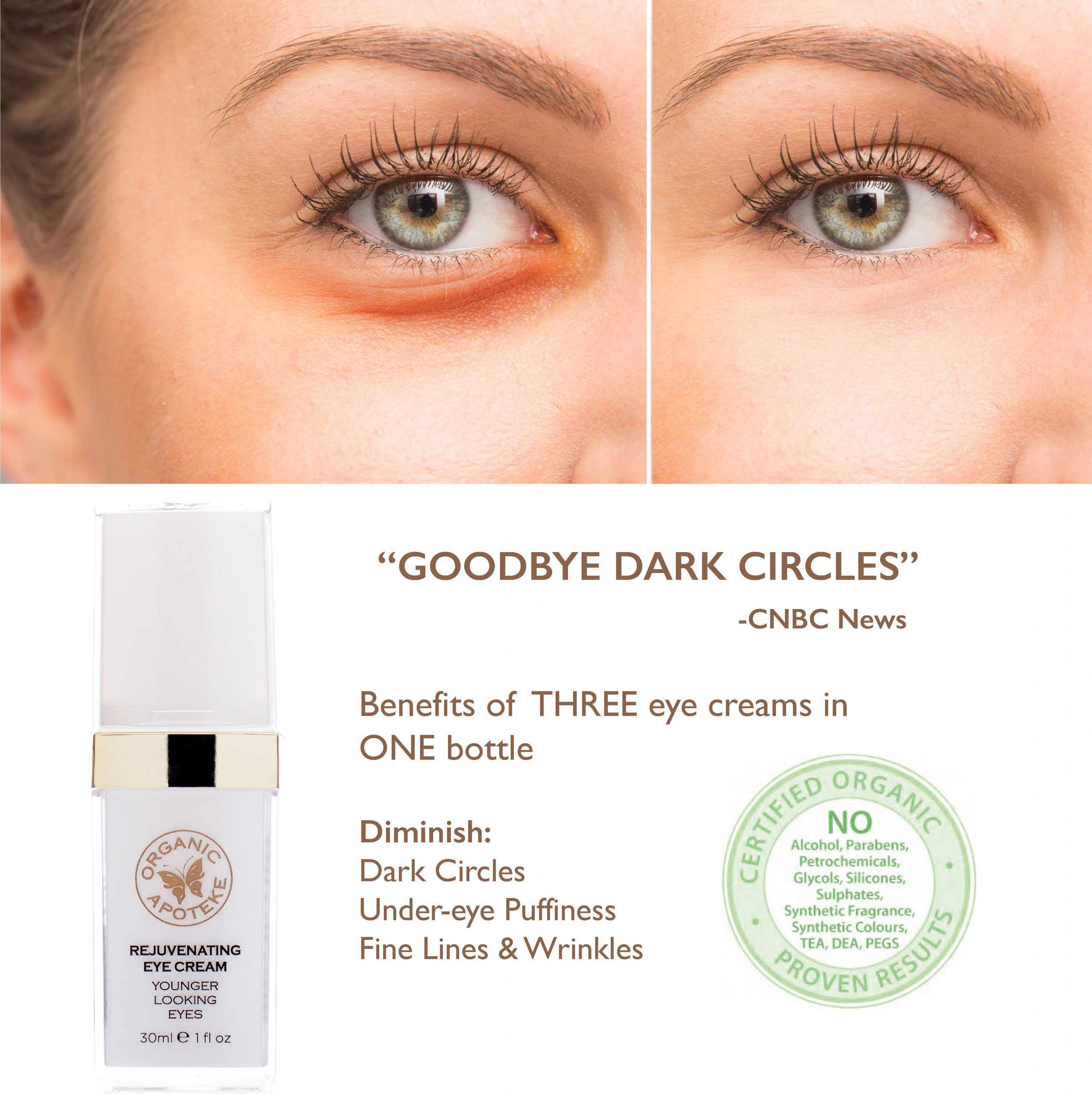 Organic Apoteke All You Need To Know About Dark Under Eye Circles